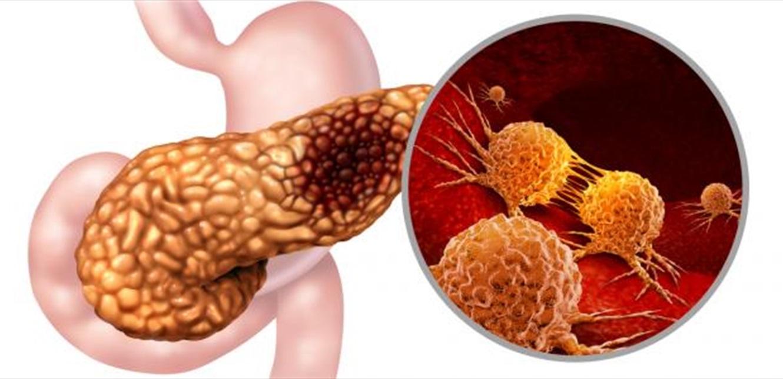 أحد الأعراض 'المشبوهة' لسرطان البنكرياس…تعرّف إليها