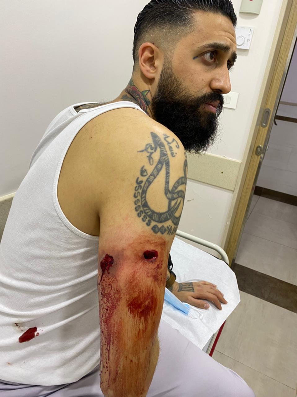 في برج البراجنة… إطلاق النار على 'اكسبرس' وإصابة صاحبه