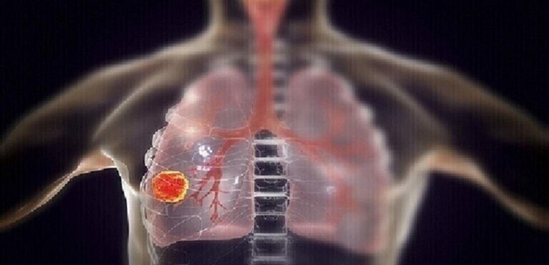 سرطان الرئة وخمس علامات تحذيرية 'مفاجئة'