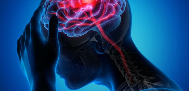 بينها شعور مفاجئ بالدوخة.. 7 علامات للجلطة الدماغية الصامتة
