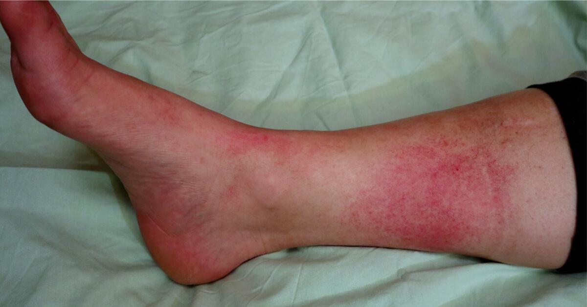 """5 أعراض لـ""""الموت الصامت"""" في الساقين يحذر منها العلماء"""